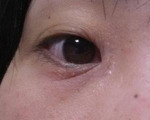 目の下のシワ1