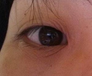 目の下のシワ4