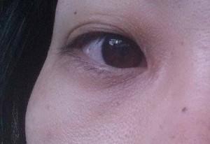 目の下のシワ5