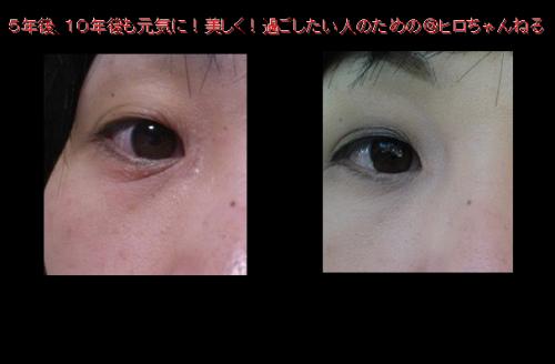 目の下のシワ3